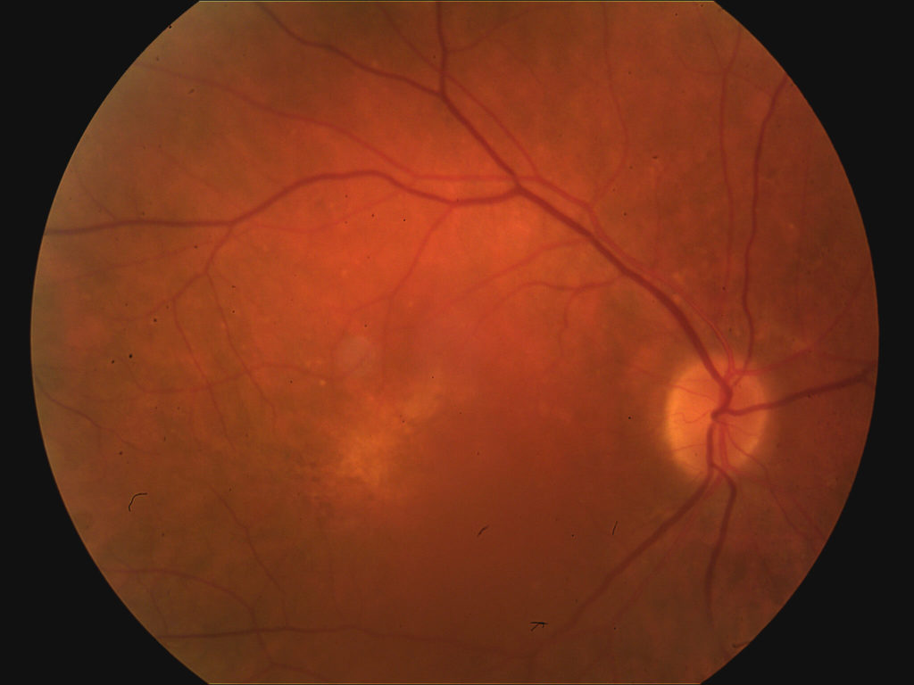 Wet AMD post Lucentis